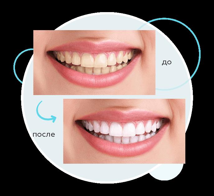 Косметическая и эстетическая стоматология